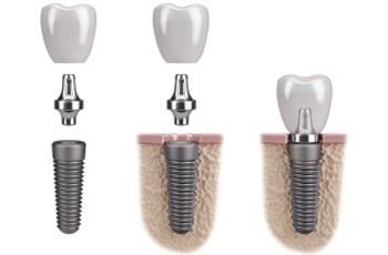 Anasayfa dental implant 3