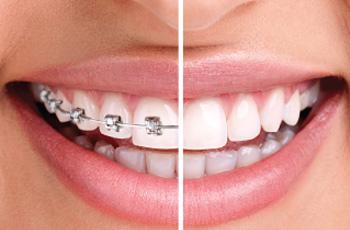 Anasayfa ortodonti 2